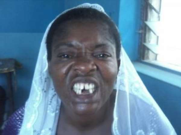 Police Arrest Man For Beating A Widow Till Her Teeth Fell Off
