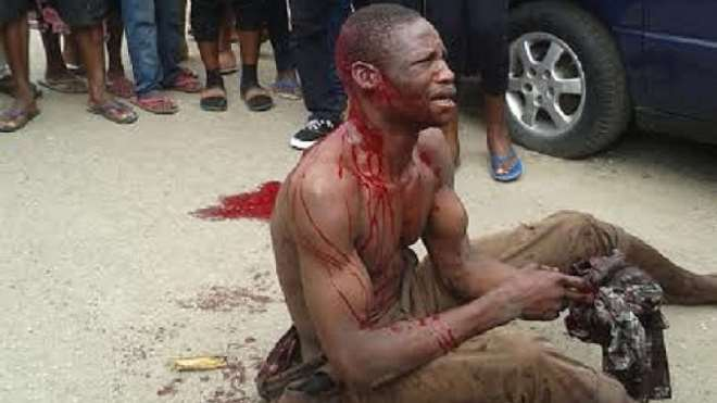8. AN ASSAULTED CRIME SUSPECT BEGGING FOR MERCY