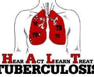 Fight Against Tuberculosis Begins with Awareness: Know the Symptoms