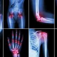 Maintaining Proper Lifestyle And Quality Life Can Help Tackle Arthritis Without Surgery