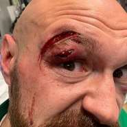 Fury Shows Off bloodied Wounds From Fight With Wallin