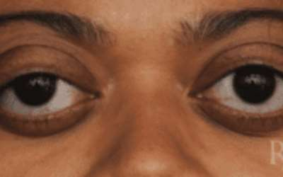 Bulging Eyes Could Be A Sign Of Serious Medical Condition Not Beauty