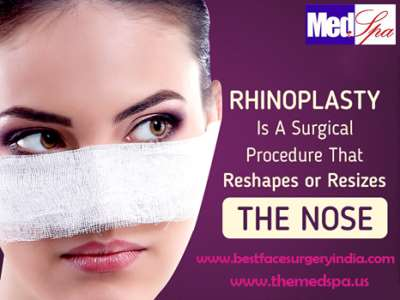Nose Surgery What To Expect After The Procedure And How It Works