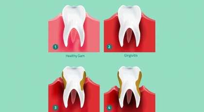 Can Gum Disease Affect Your Fertility?