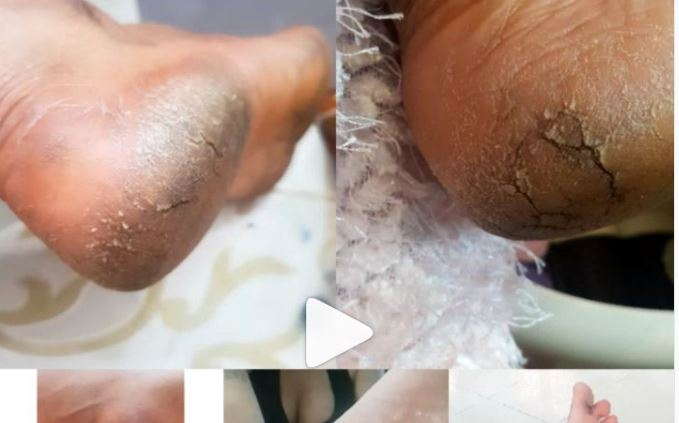 Actress, Tonto Dikeh Suffering from Under feet Scaling