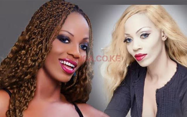skin bleaching in africa