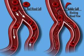 Sickle Cell Disease: Know Your Status!