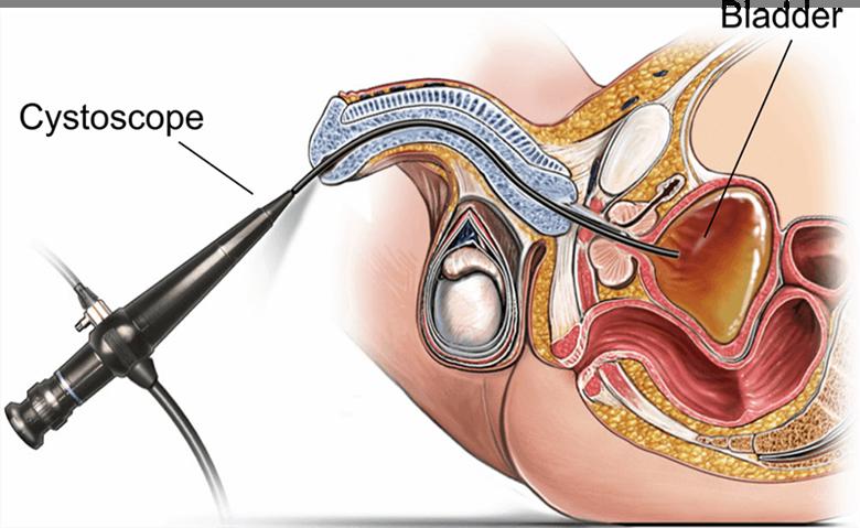 Homeopátia Prostatitis Vélemények A prosztatitis nem zavar
