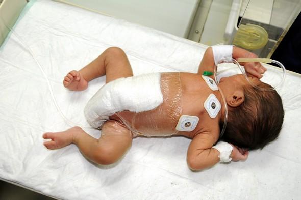 Почему у ребенка болит живот и температура, и что