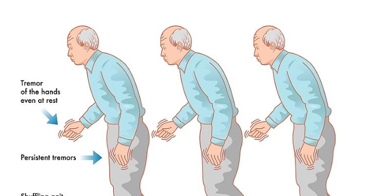 The Parkinson's Disease In View