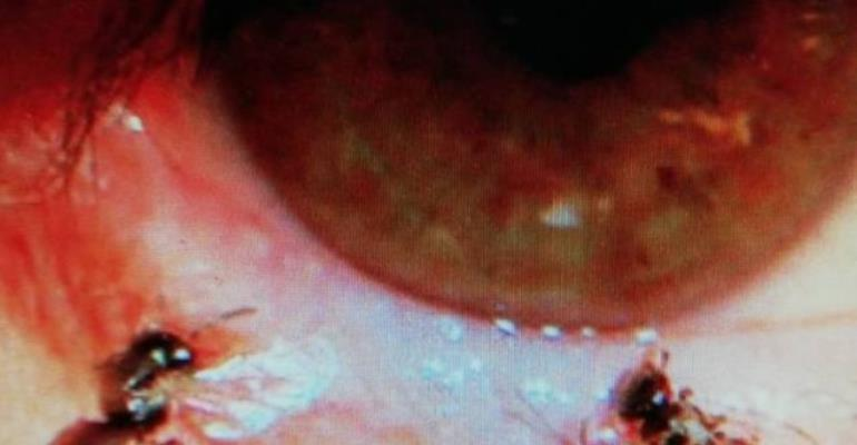 Doctors Find Four Bees Living In Woman's Eye, Feeding On Her Tears