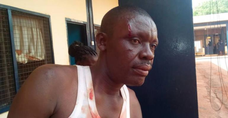An injured policeman: a victim of the soldiers brutality