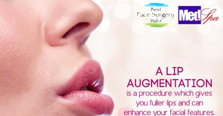 lip augmentation in delhi by dr. ajaya kashyap