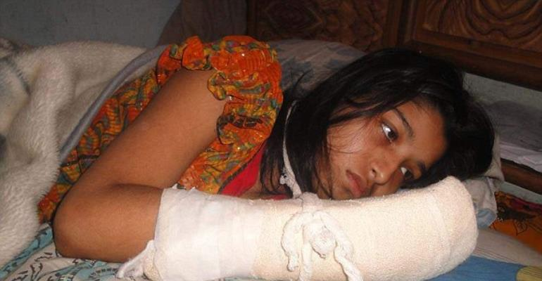 Bangladeshi woman who got her five fingers choped off by her husband