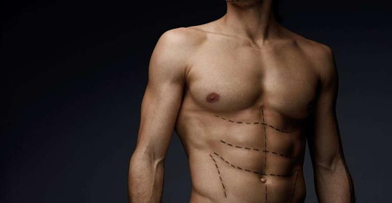 The Rise Of  Butt And Chest Implants Among Men