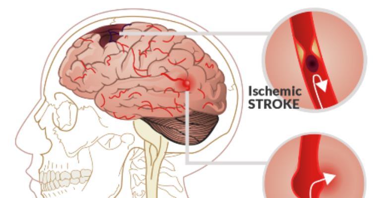 More Effort Needed For Stroke Prevention - Dr. Jabuni