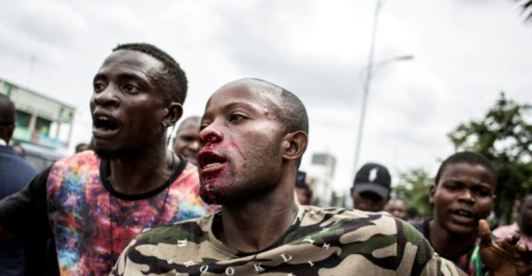 A young man was injured in the face after police fired warning shots to disperse worshippers outside Kinshasa cathedral.  By JOHN WESSELS (AFP)