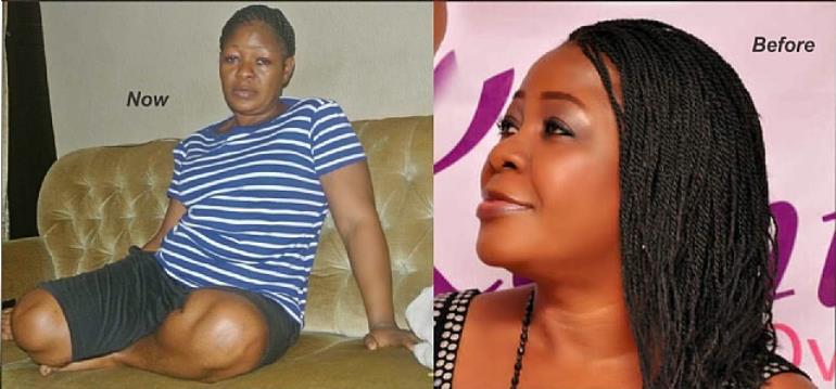 Actress Omotunde Ogundimu Announces She Have Stopped Bleeding