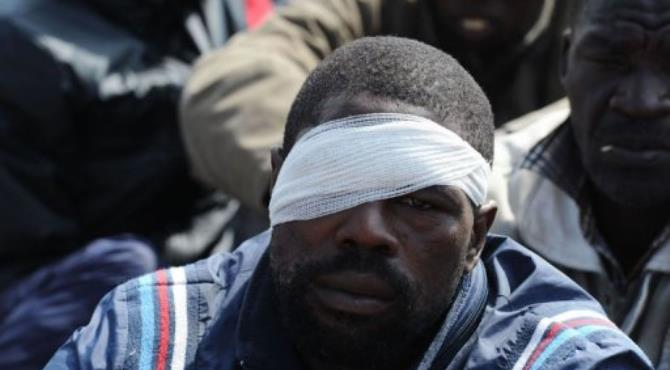 An injured miner at London-listed Lonmin's Marikana platinum mine.  By  (AFP)