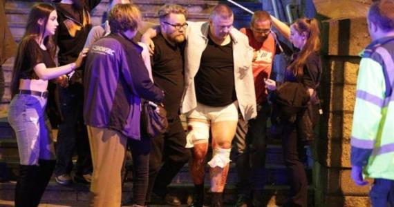 Manchester attack: 22 dead and 59 hurt in suicide bombing