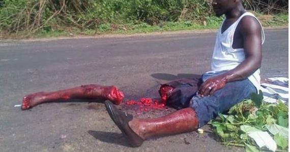 Graphic Photos: Nollywood Actor, 'Butchered' while on Movie Set