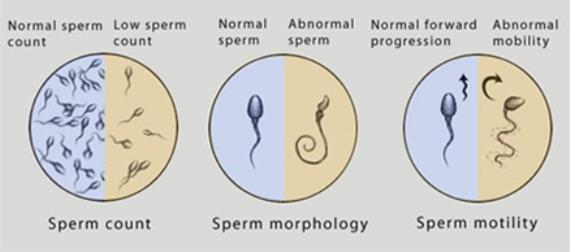 Dealing With Male Infertility-The Case Of Quantity And Quality (part 3)