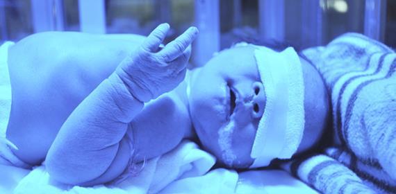 Neonatal Jaundice Increasing