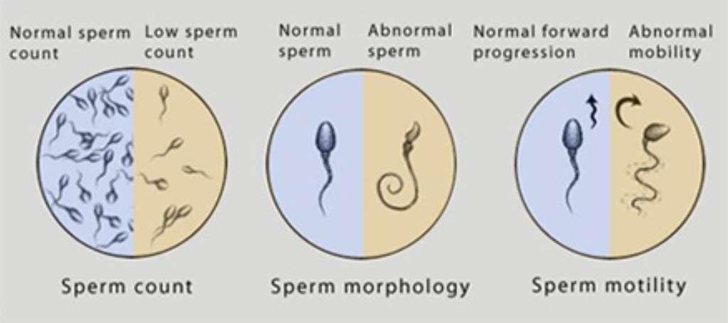 Male quantity sperm