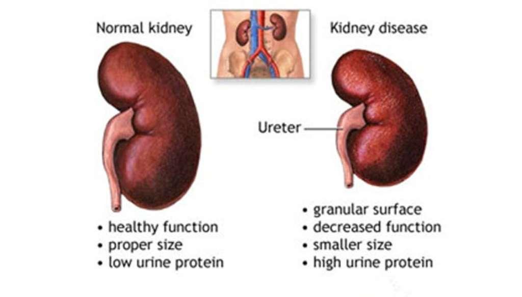 10 Common Bad Habits That Cause Kidney Failure Damage