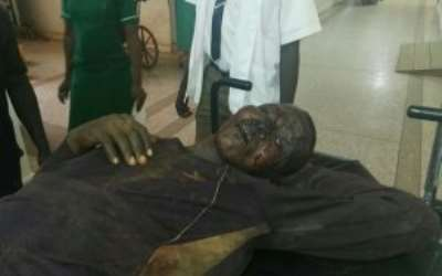 WIZARD' BEATEN TO PULP … three days after poor woman stoned