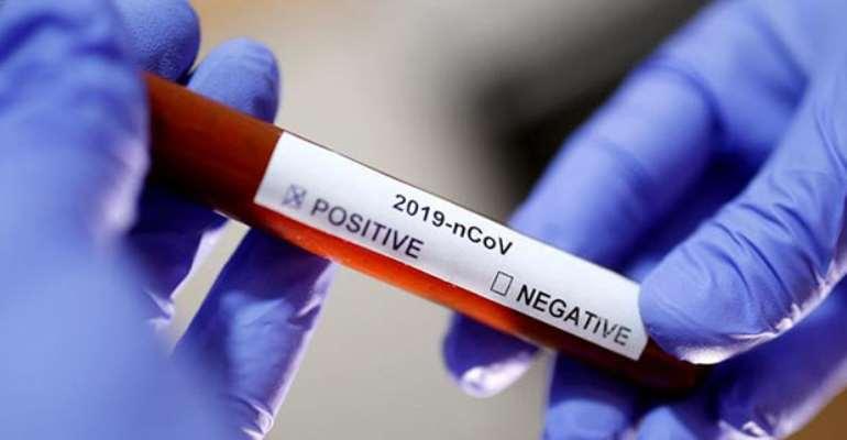 Coronavirus: 92 Test Positive At KIA – Akufo-Addo