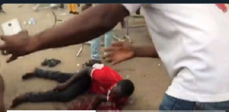 Four Bullets Removed From Kotoko Fan's Head