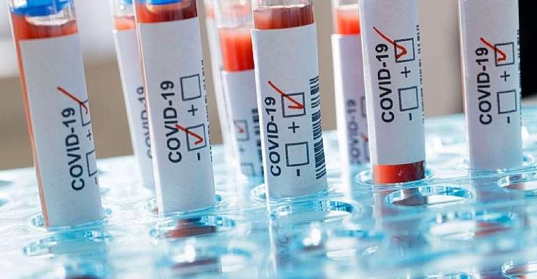 Global coronavirus cases surpass 50 million