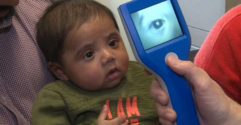 Babies Can Have Cataracts Too, Ensure Regular Eye Check-up From Birth Itself