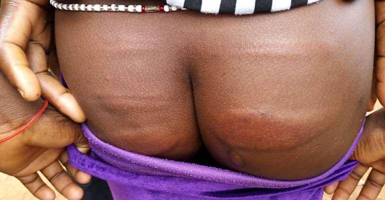 Ahafo Region : Angry Parents Assaults Headmaster In Kokofu