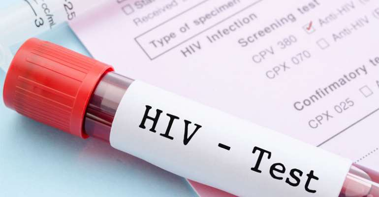 Tema: 1,072 Test HIV Positive