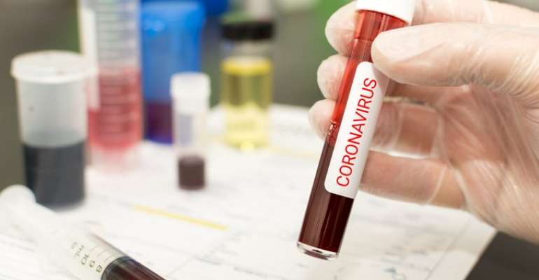 Coronavirus: List Of African Countries With Confirmed Cases