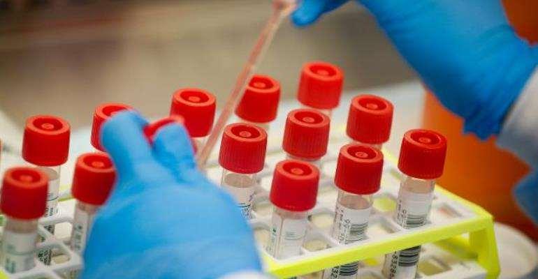 Coronavirus: GNECC Supports Gov't To Fight Spread