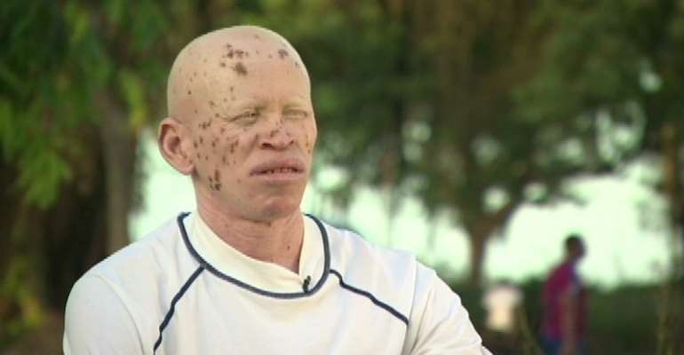 Albinism In Africa: The Struggle For Survival