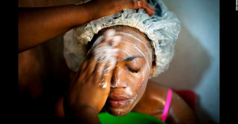The High Price Of Skin Bleaching