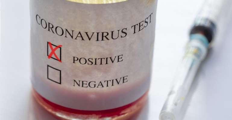 Patriotic Vaccines: The Divided Coronavirus Cause