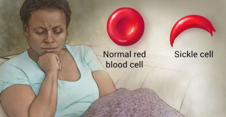 The Doom Of Sickle Cell Disease