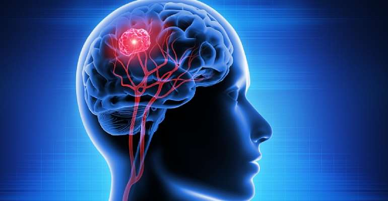 Brain tumour treatment during Covid: Can it be delayed?