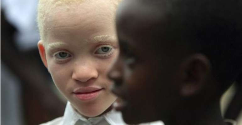 Albinism: What Do You See? My Complexion Or My Person?