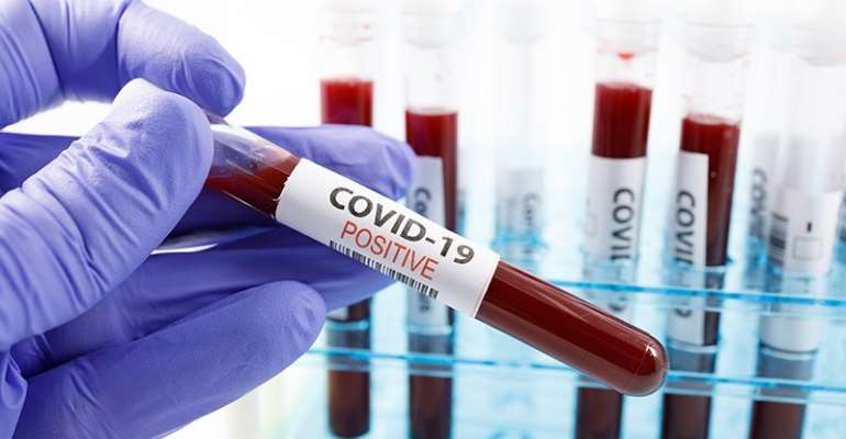 Covid-19: Ashanti Region Leads In Latest Confirmed Cases