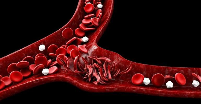 Public-Private Partnership To Improve The Lives Of People With Sickle Cell Disease