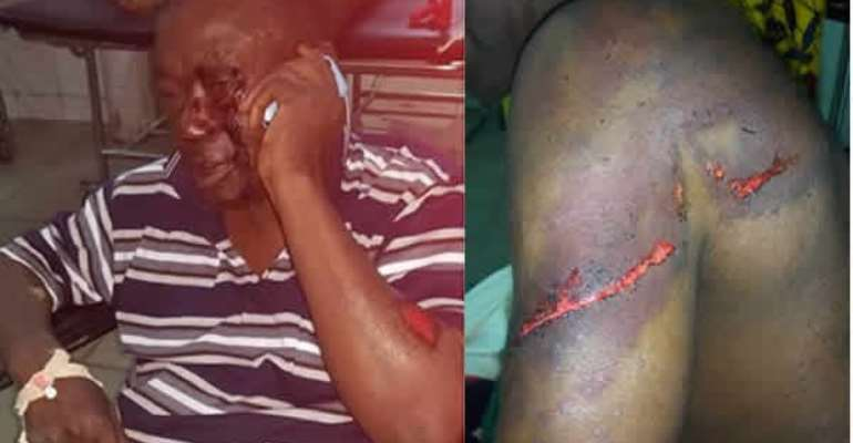 Nana Kwasi Agyemang IX was brutalised by men allegedly hired by Nana Hema Dekye