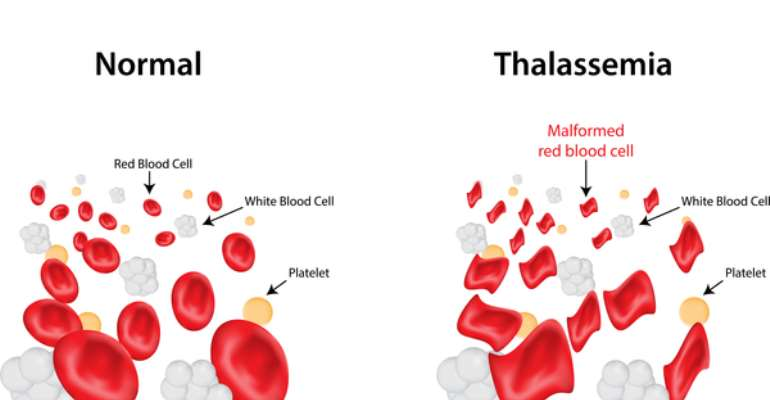 Myths and Reality associated with Thalassemia