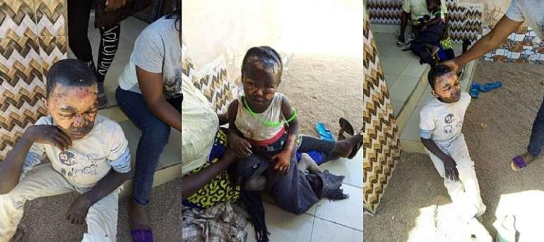 Children Burnt for Witchcraft in Central Nigeria