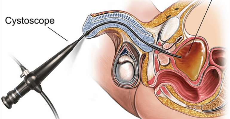 Special Report: Are you suffering from Prostatitis?
